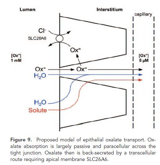 Control of Urine Oxalate Excretion | Kidney Stone Evaluation
