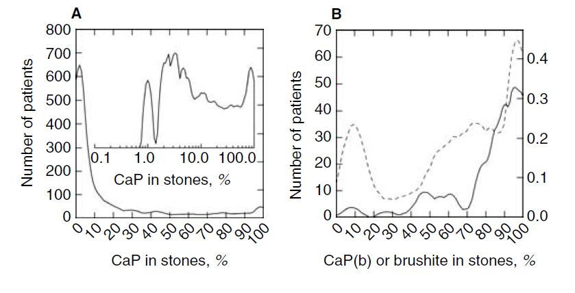 phosphate in stones from our series and KI paper